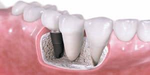 имплантация_зубов