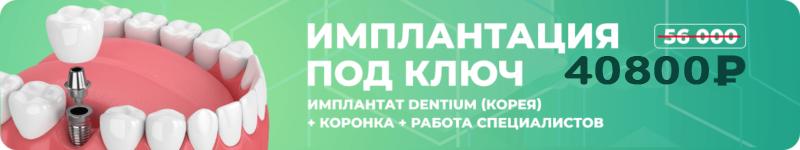 Implantatsiya-pod-klyuch-1-e1544093775406