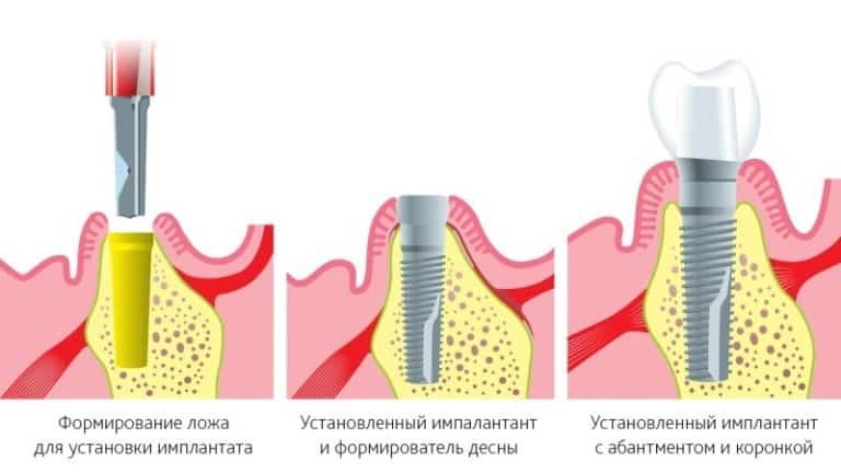 ustanovka_implanta