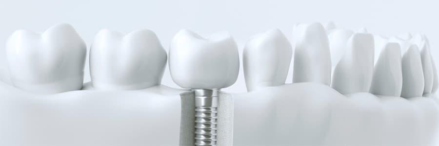 protez+zuba
