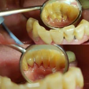 чистка зубов ВВ