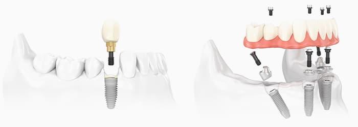 protezirovanie-zubov-na-implantah0