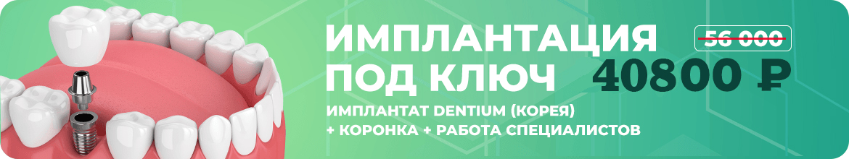 Implantatsiya-pod-klyuch-1